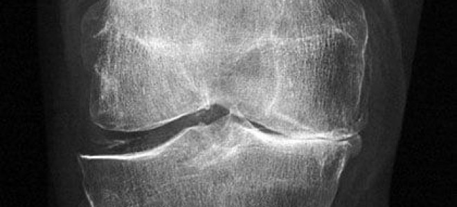 Как проходит операция по замене коленного сустава, подготовка и реабилитация