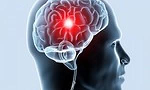 Симптомы ишемии головного мозга у взрослых