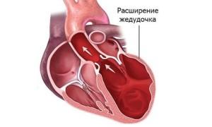 Ишемическая кардиомиопатия что это такое