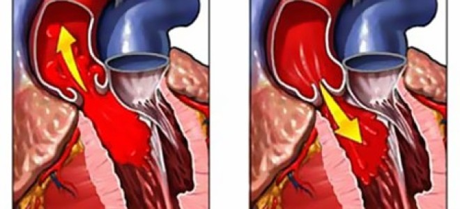 Симптомы и лечение аортальной регургитации в первой степени