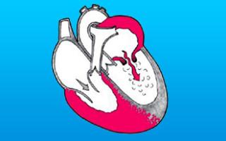Митральный стеноз: Симптомы, диагностика, лечение стеноза митрального клапана