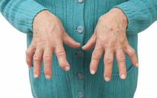 Причины ревматоидного полиартрита, симптомы и лечение, как диагностировать болезнь, каковы риски осложнений
