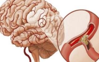 Таблетки для сосудов головного мозга
