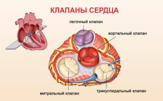 Операция по замене сердечного клапана