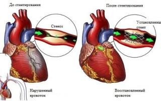 Сколько живут после стентирования сосудов сердца
