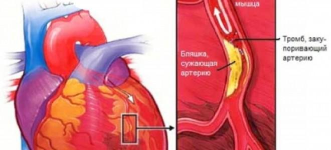 Классификация инфаркта миокарда: стадии, этапы нарушения, возможные осложнения тяжелой патологии, способы профилактики