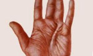 Симптомы контрактуры Дюпюитрена: вариант лечения без операции