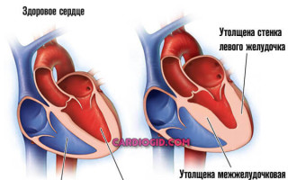 Инфаркт миокарда что это такое