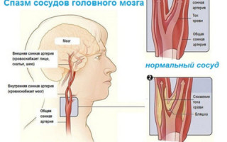 Как убрать спазм сосудов головного мозга