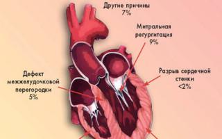 Что такое кардиогенный шок