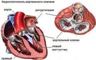 Недостаточность аортального клапана 1 степени
