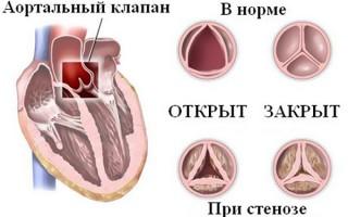 Сердечные боли