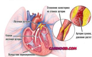 Укрепление сердечной мышцы препараты