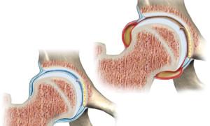 Причины, симптомы и лечение синовита тазобедренного сустава у детей