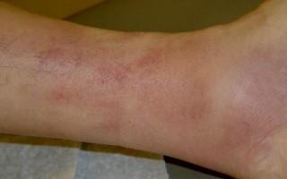 Флебит вены на ноге