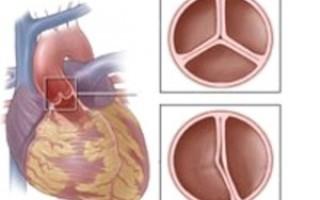 Недостаточность аортального клапана 1 и 2 степени (симптомы, лечение)