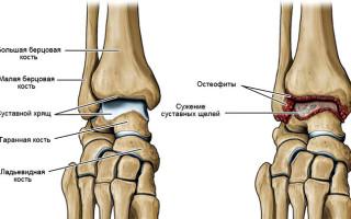 Симптомы и лечение артроза голеностопных суставов, факторы развития и методы профилактики