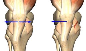 Какое нарушение называют дисплазией коленных суставов у взрослых и детей