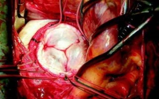 Реабилитация после операции на сердце замена клапана