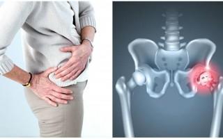 Причины развития двустороннего коксартроза 2 степени, симптомы нарушения, способы эффективного лечения суставов