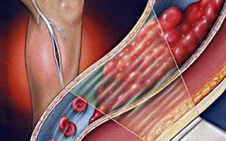 Тромб в легких лечение