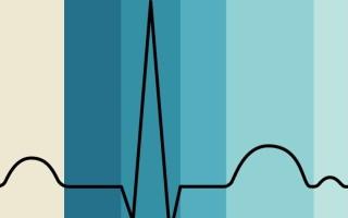 Отведения ЭКГ — их значимость в диагностике патологий сердца
