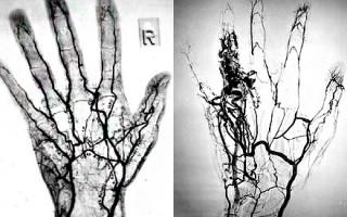 Особенности проведения МР ангиографии для постановки точного диагноза