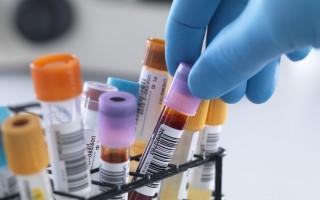 Как подготовиться к сдаче анализа крови на сахар? Каковы нормы у новорожденных детей и школьников?