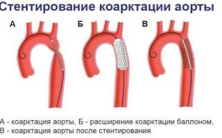 Атеросклероз аорты что это
