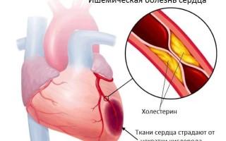 Перебои в сердце