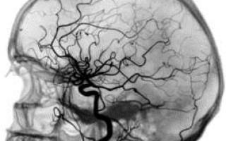 Церебральная ангиография — область применения, противопоказания