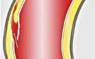 Расслаивающая аневризма брюшного отдела аорты