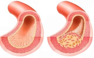 Заболевания артерий