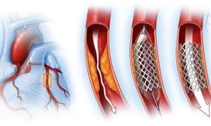 Физические нагрузки после стентирования сосудов сердца