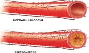 Стенозирующий атеросклероз брахиоцефальных артерий