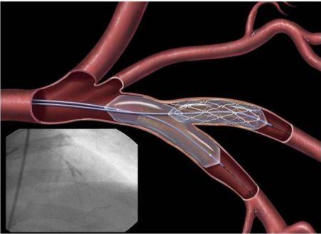 Почему после инфаркта нельзя поднимать тяжести